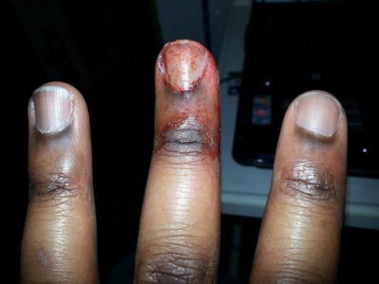 cellar management fingers